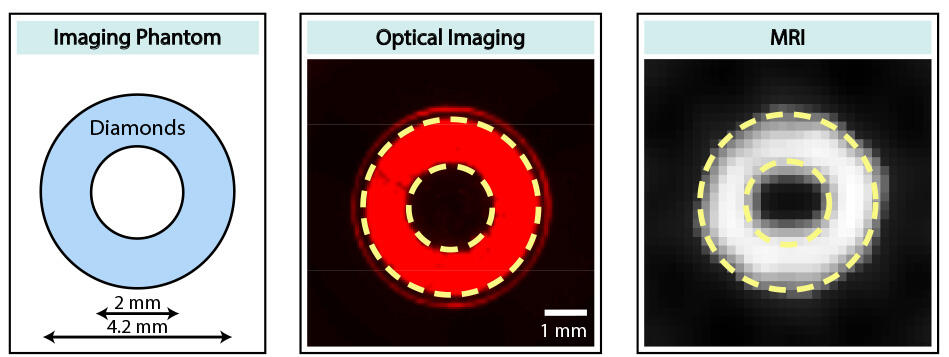 Diamond particles arranged in a ring were imaged both optically and with magnetic resonance imaging (MRI).